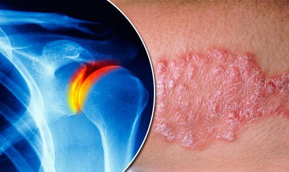 Psoriatic-arthritis-811079